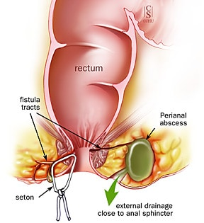 Anal perianal cysts and caffeine