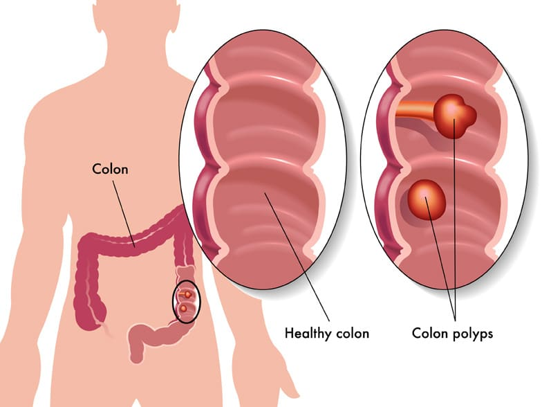 I've had my colon removed and I have an ileostomy. Will Absorb Plus still work for me?
