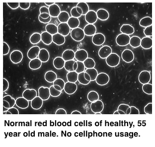 cell-normal