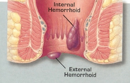 What Do External Hemorrhoids Look Like