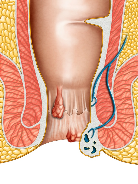 Help for Hemorrhoids & Loose Anal Sphincter Muscle