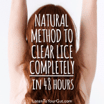 Natural Method To Clear Lice Completely in 48 Hours